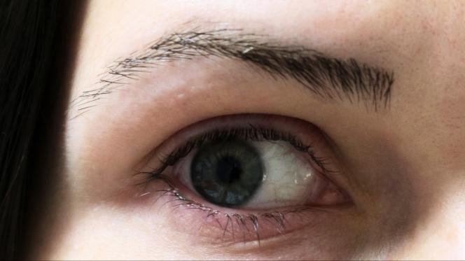 pink eye4